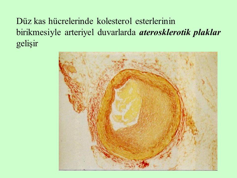 Düz kas hücrelerinde kolesterol esterlerinin birikmesiyle arteriyel duvarlarda aterosklerotik plaklar gelişir