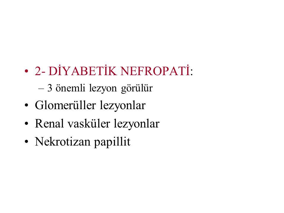 2- DİYABETİK NEFROPATİ: Glomerüller lezyonlar Renal vasküler lezyonlar