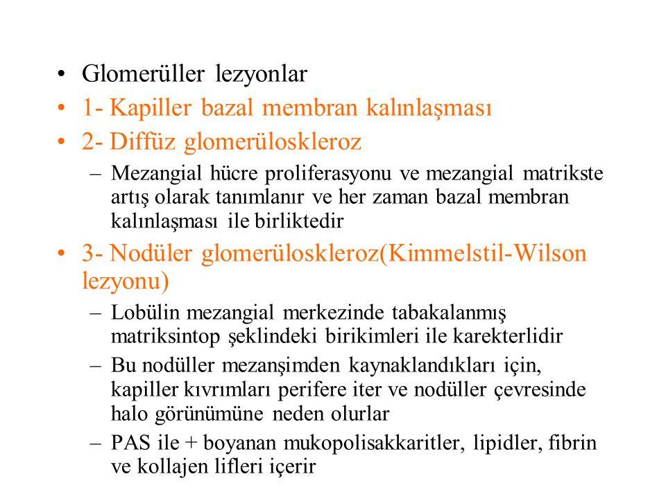 Glomerüller lezyonlar 1- Kapiller bazal membran kalınlaşması