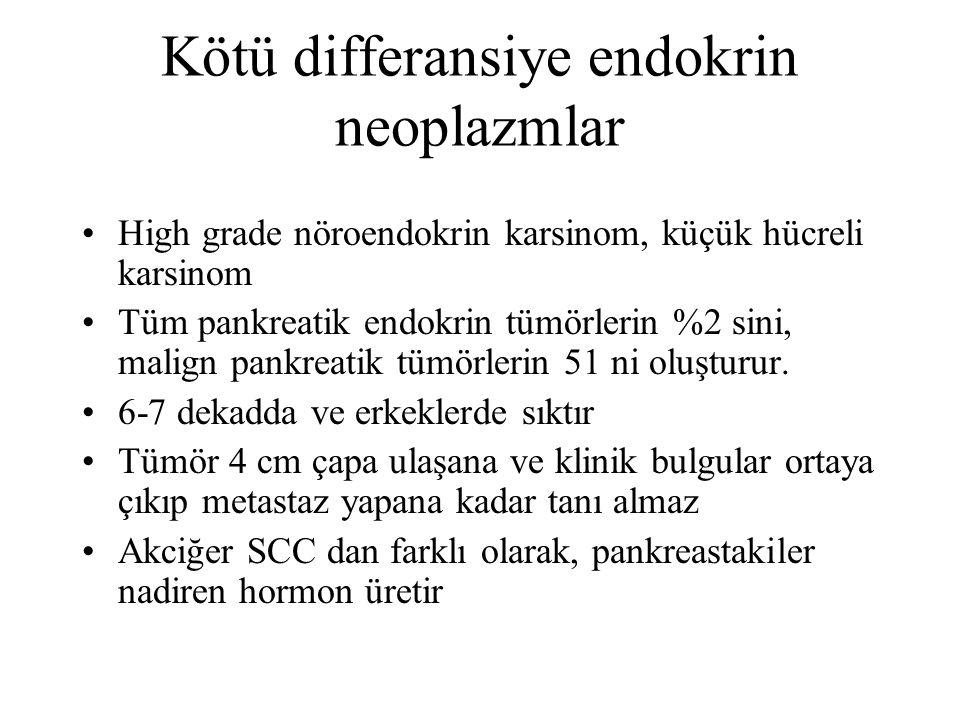 Kötü differansiye endokrin neoplazmlar