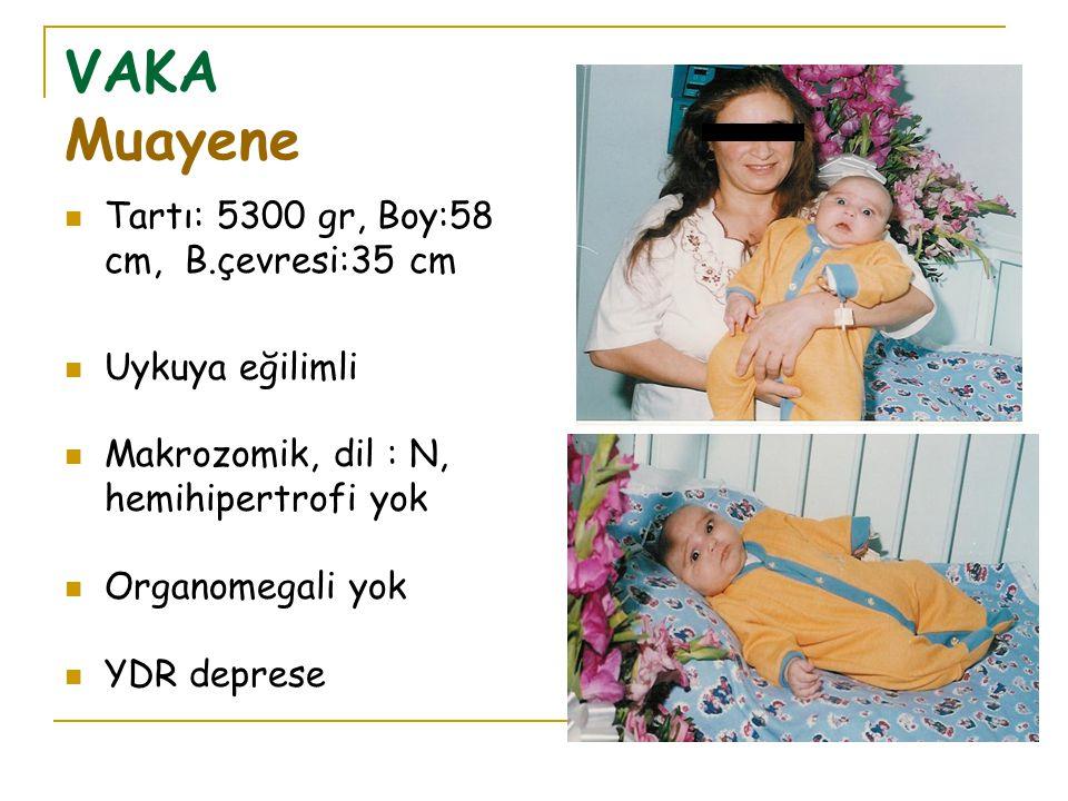VAKA Muayene Tartı: 5300 gr, Boy:58 cm, B.çevresi:35 cm