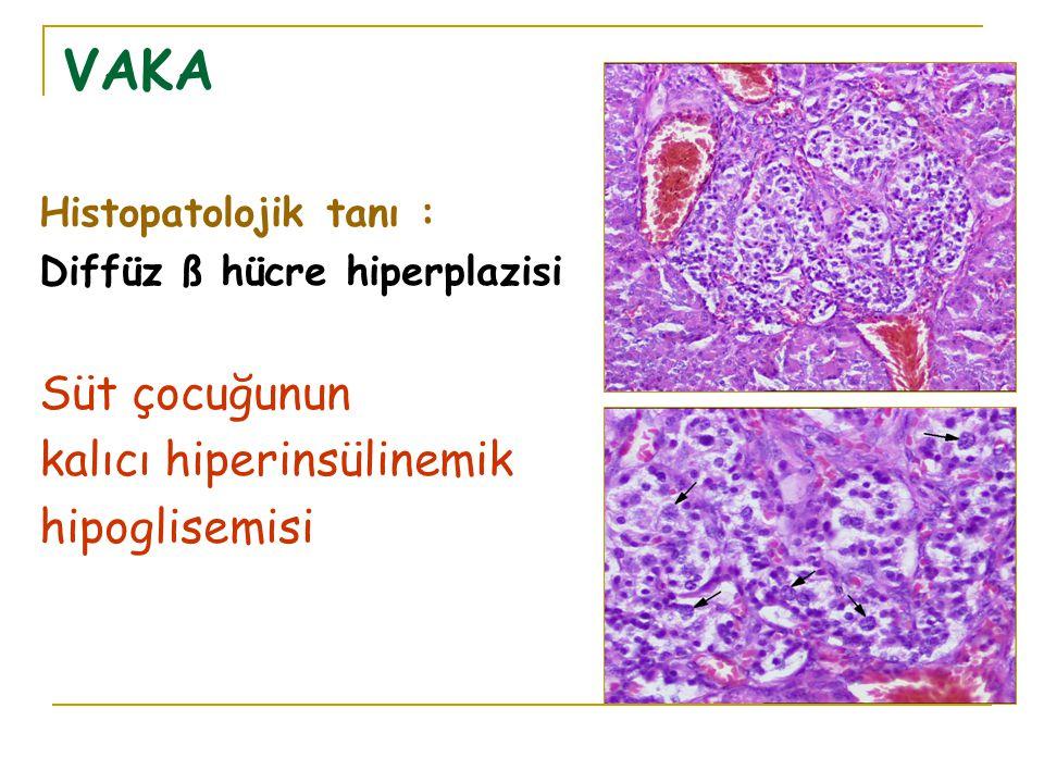 VAKA Süt çocuğunun kalıcı hiperinsülinemik hipoglisemisi