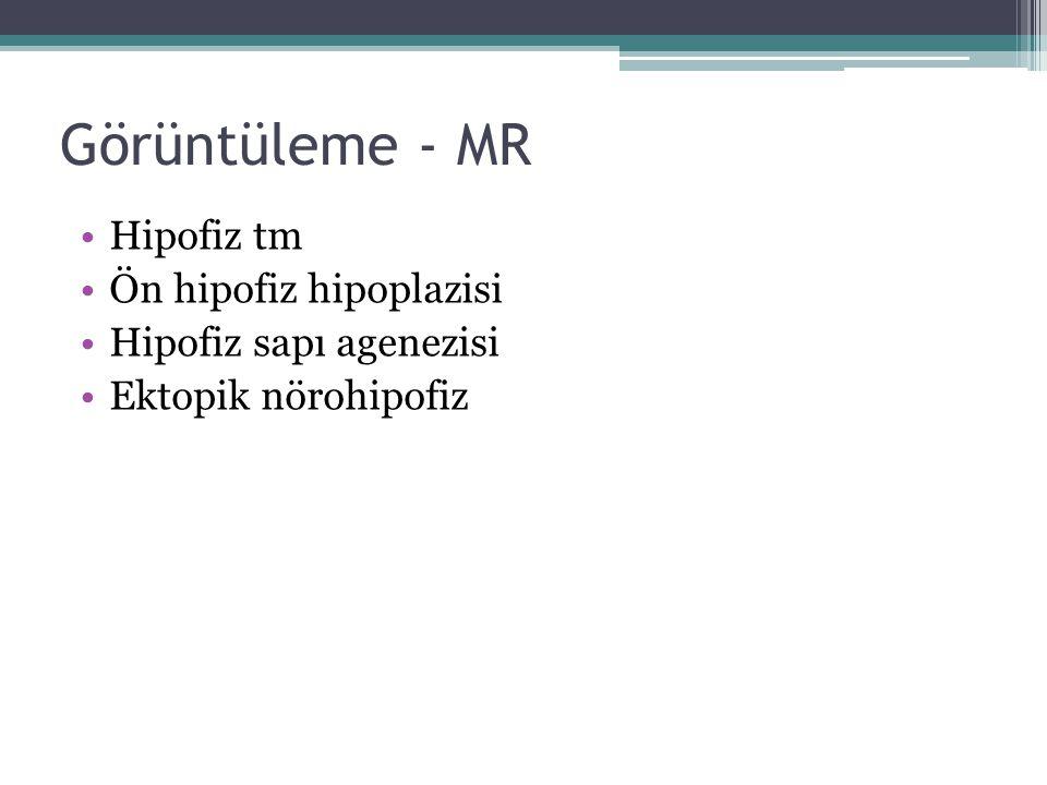 Görüntüleme - MR Hipofiz tm Ön hipofiz hipoplazisi