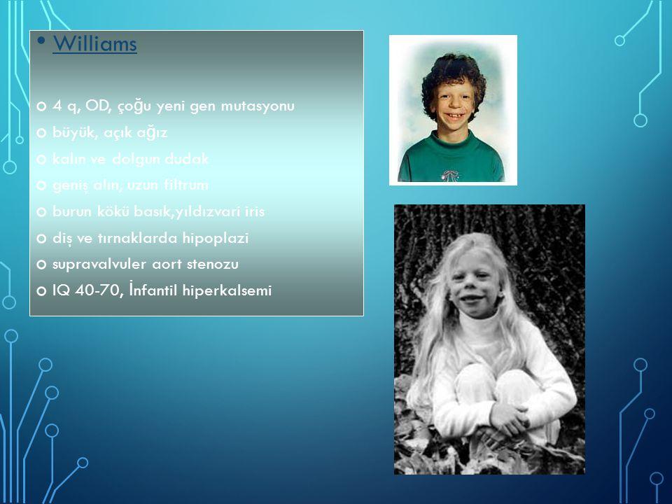 Williams 4 q, OD, çoğu yeni gen mutasyonu büyük, açık ağız
