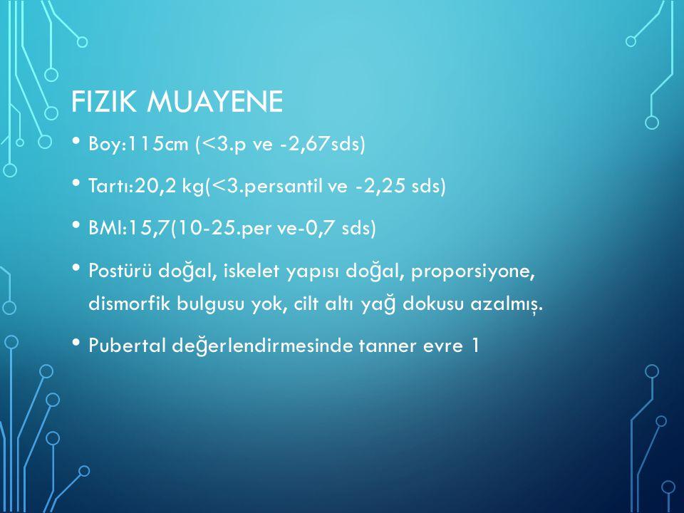 Fizik muayene Boy:115cm (<3.p ve -2,67sds)