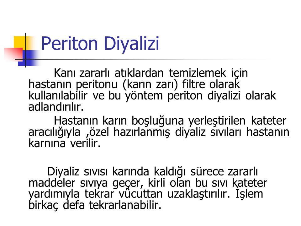 Periton Diyalizi