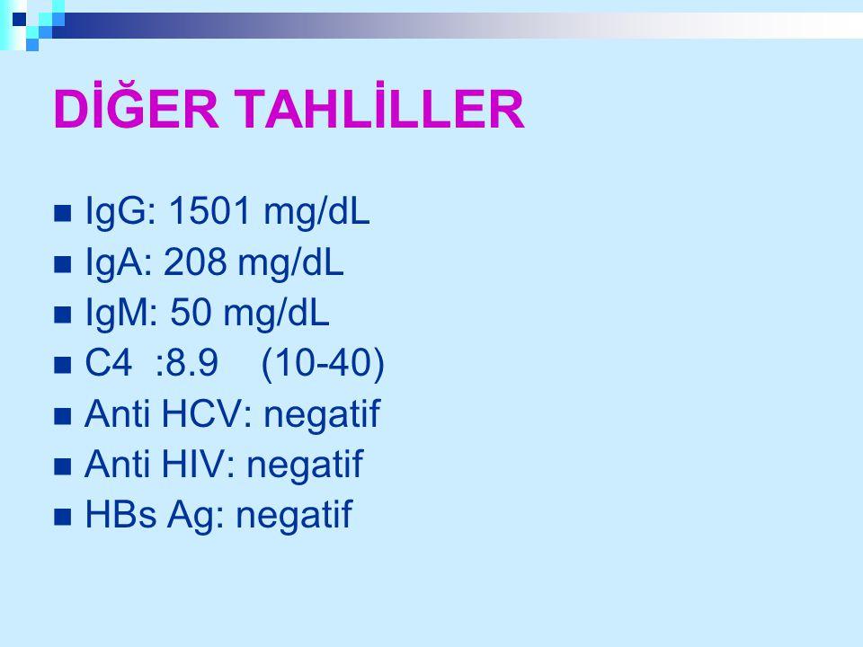 DİĞER TAHLİLLER IgG: 1501 mg/dL IgA: 208 mg/dL IgM: 50 mg/dL