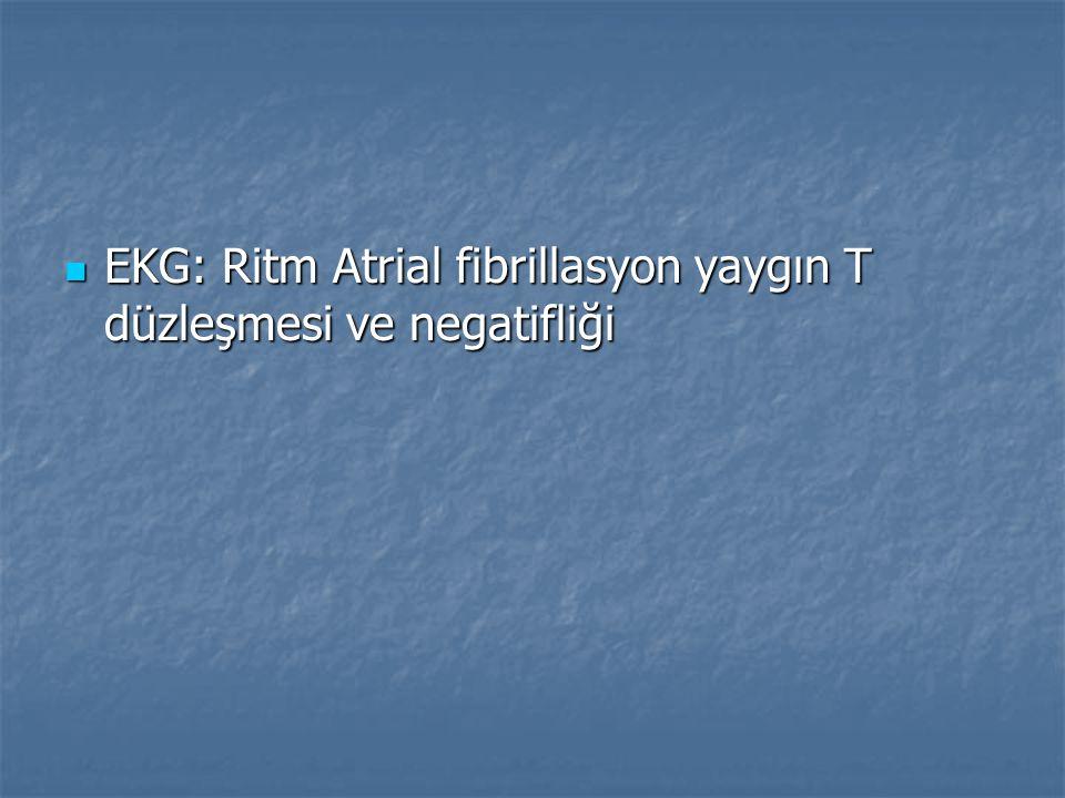 EKG: Ritm Atrial fibrillasyon yaygın T düzleşmesi ve negatifliği