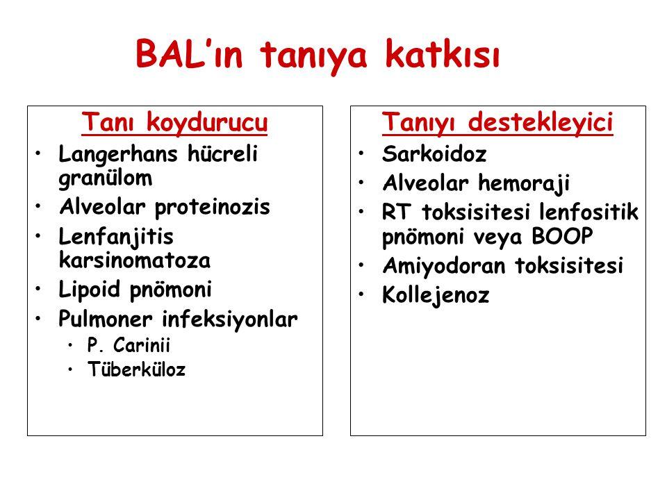 BAL'ın tanıya katkısı Tanı koydurucu Tanıyı destekleyici