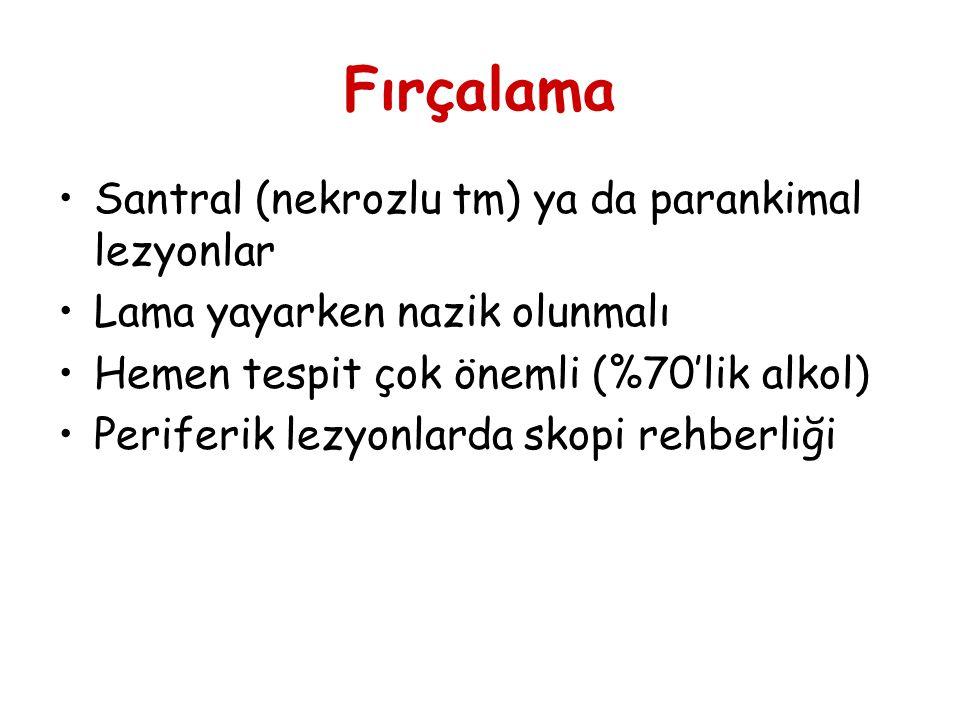 Fırçalama Santral (nekrozlu tm) ya da parankimal lezyonlar