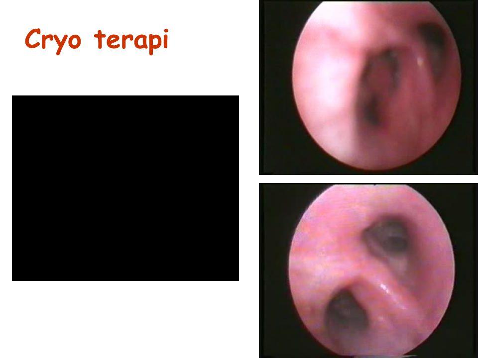 Cryo terapi