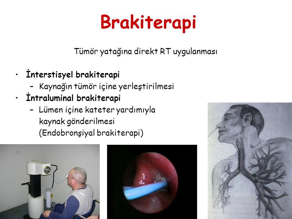 Brakiterapi Tümör yatağına direkt RT uygulanması