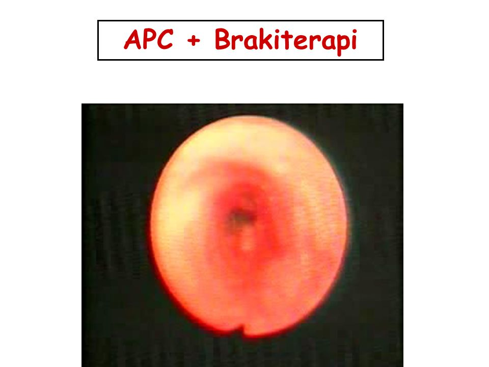 APC + Brakiterapi