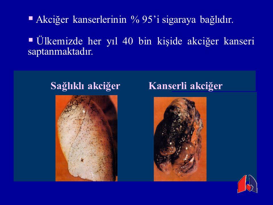 Akciğer kanserlerinin % 95'i sigaraya bağlıdır.