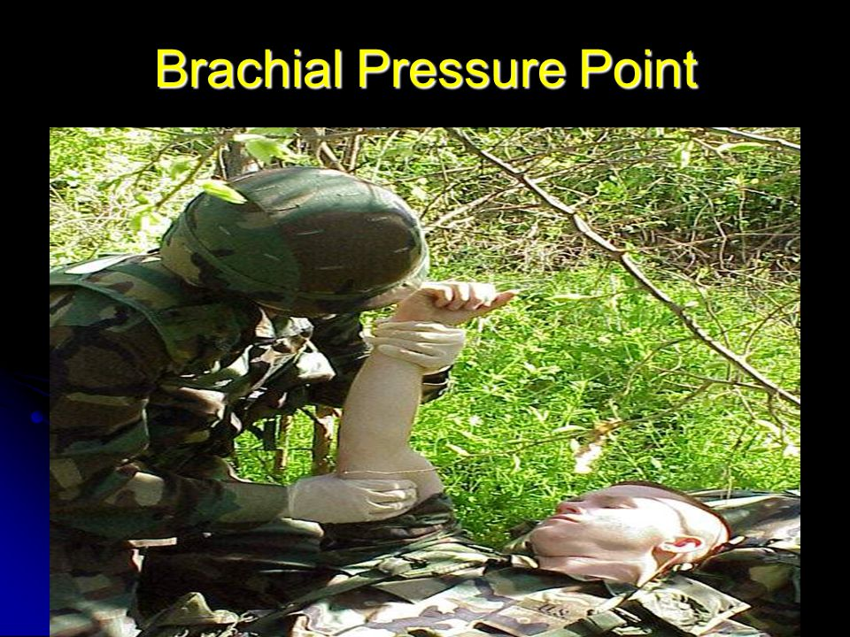 Brachial Pressure Point