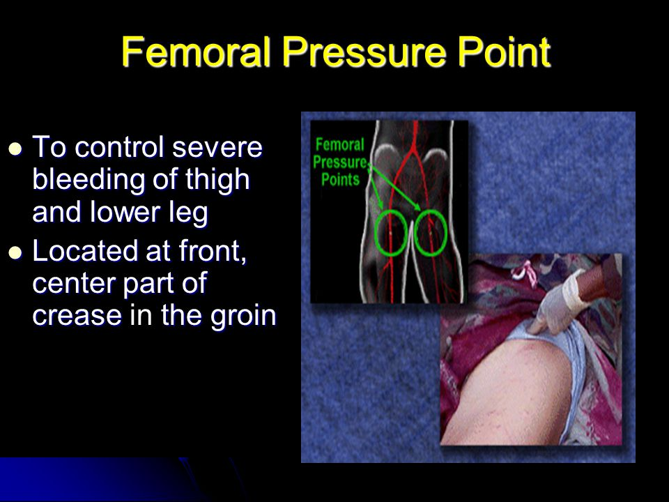 Femoral Pressure Point