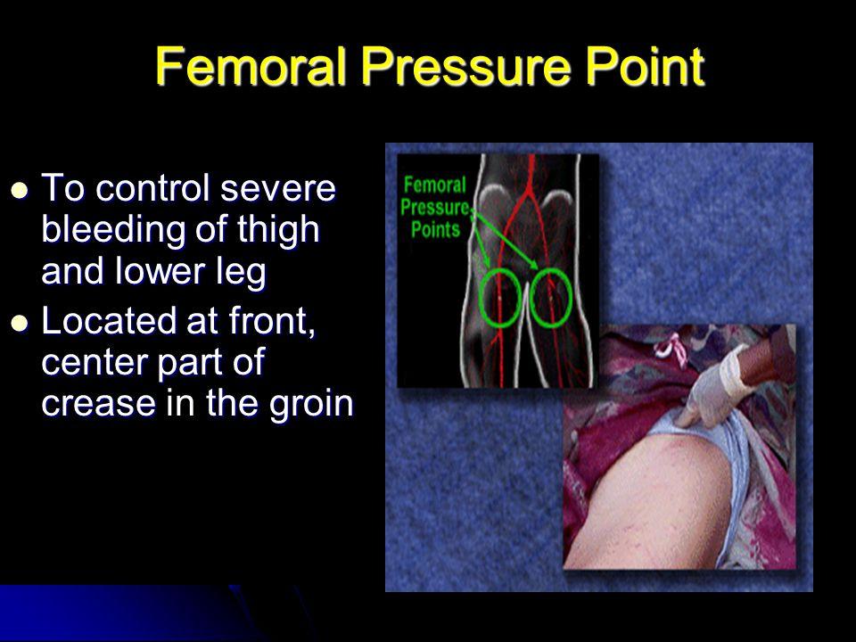 Femoral Pressure Point