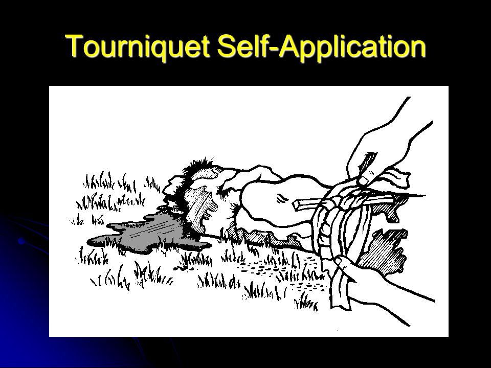 Tourniquet Self-Application