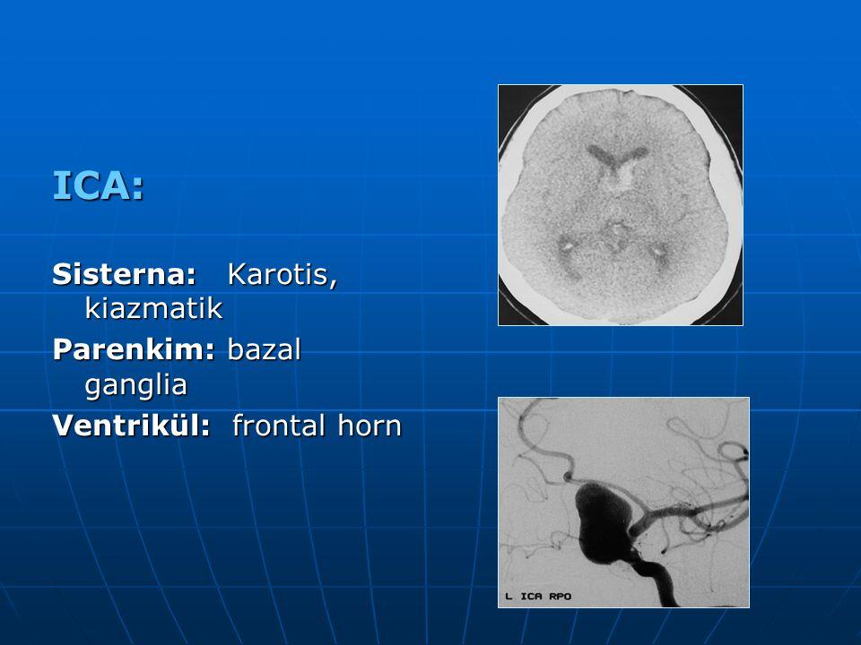 ICA: Sisterna: Karotis, kiazmatik Parenkim: bazal ganglia