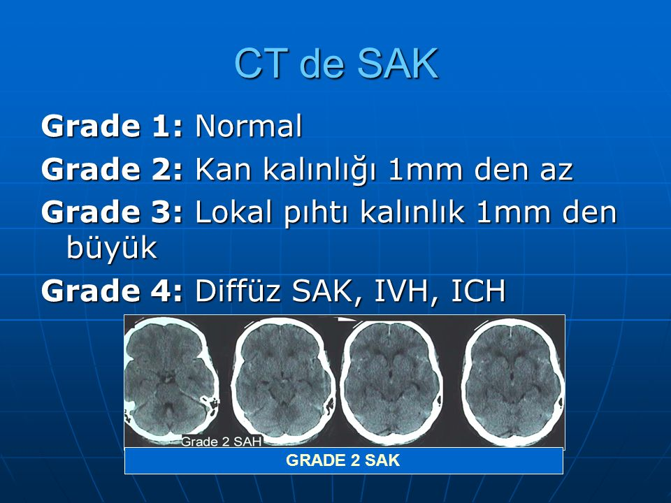 CT de SAK Grade 1: Normal Grade 2: Kan kalınlığı 1mm den az