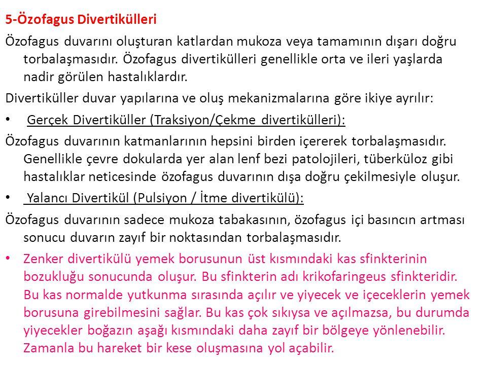 5-Özofagus Divertikülleri