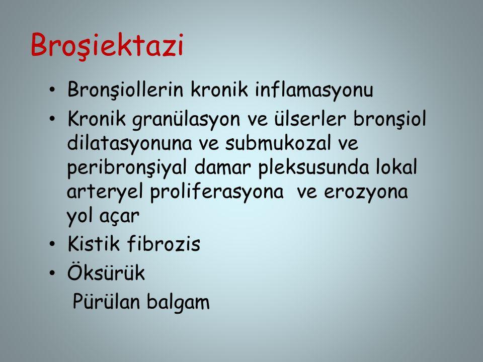 Broşiektazi Bronşiollerin kronik inflamasyonu