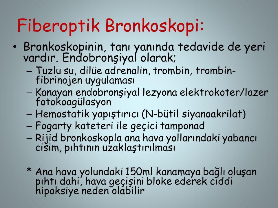 Fiberoptik Bronkoskopi: