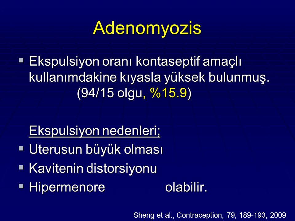 Adenomyozis Ekspulsiyon oranı kontaseptif amaçlı kullanımdakine kıyasla yüksek bulunmuş. (94/15 olgu, %15.9)