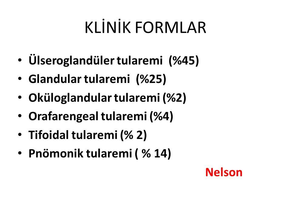 KLİNİK FORMLAR Ülseroglandüler tularemi (%45) Glandular tularemi (%25)