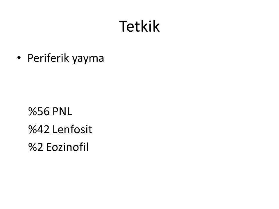 Tetkik Periferik yayma %56 PNL %42 Lenfosit %2 Eozinofil