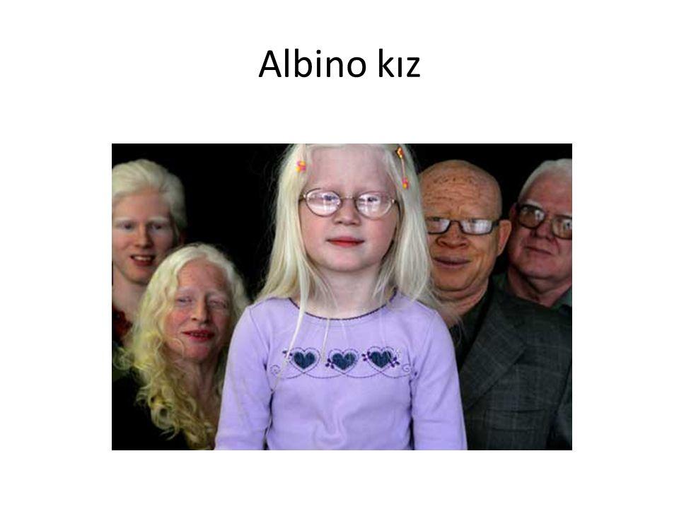Albino kız