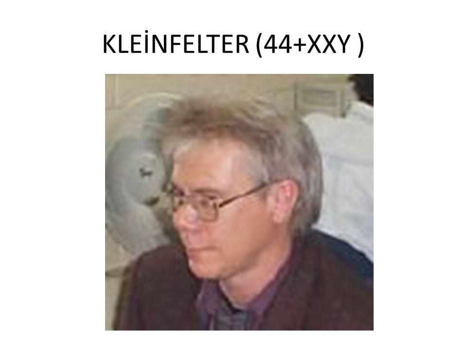 KLEİNFELTER (44+XXY )