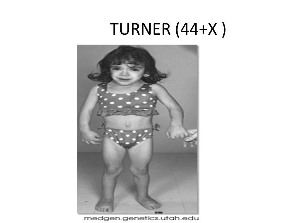 TURNER (44+X )