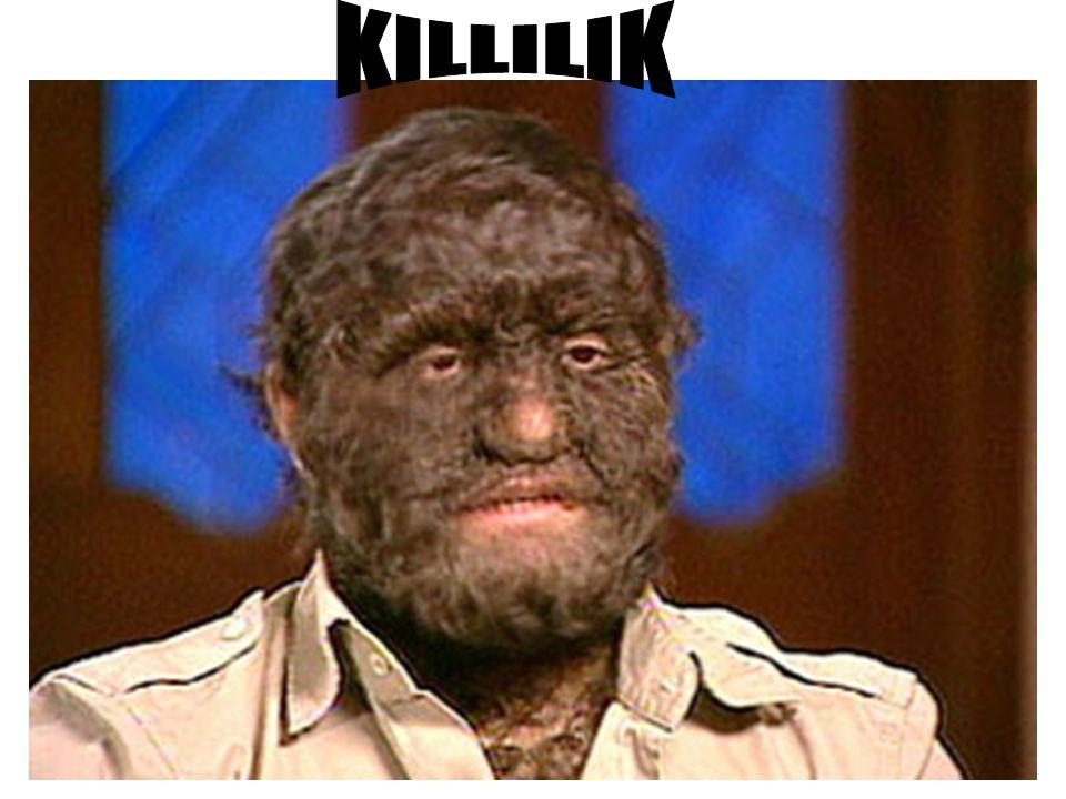 KILLILIK