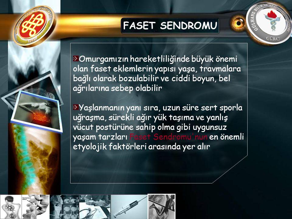 FASET SENDROMU