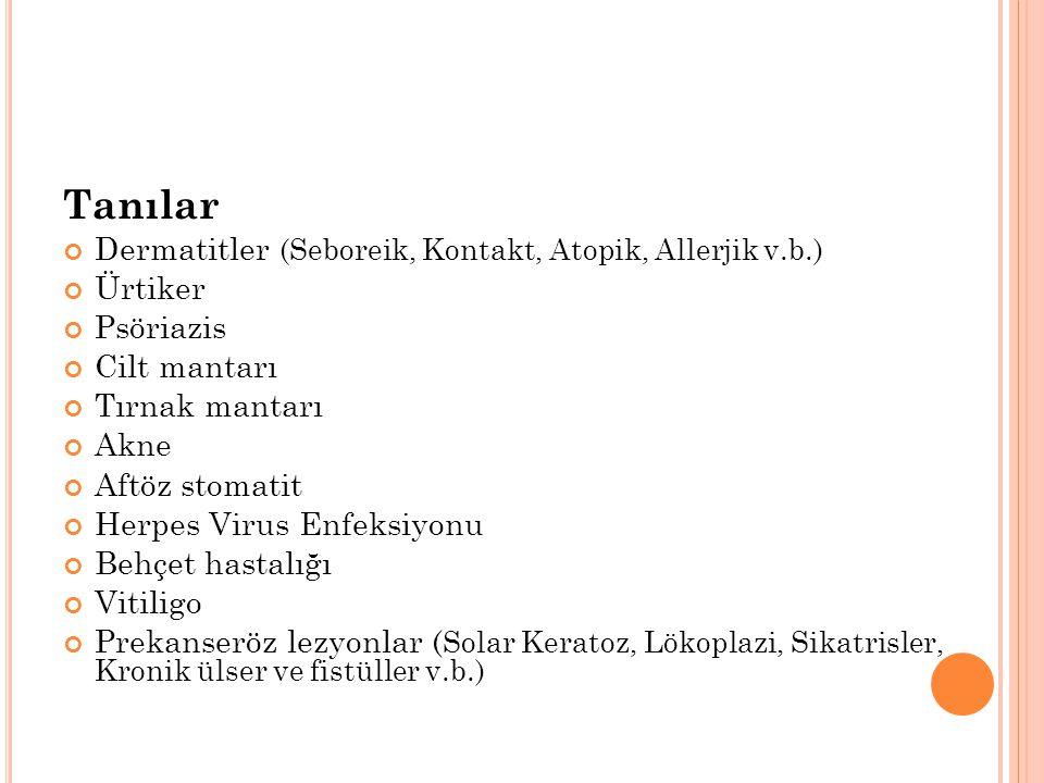 Tanılar Dermatitler (Seboreik, Kontakt, Atopik, Allerjik v.b.) Ürtiker