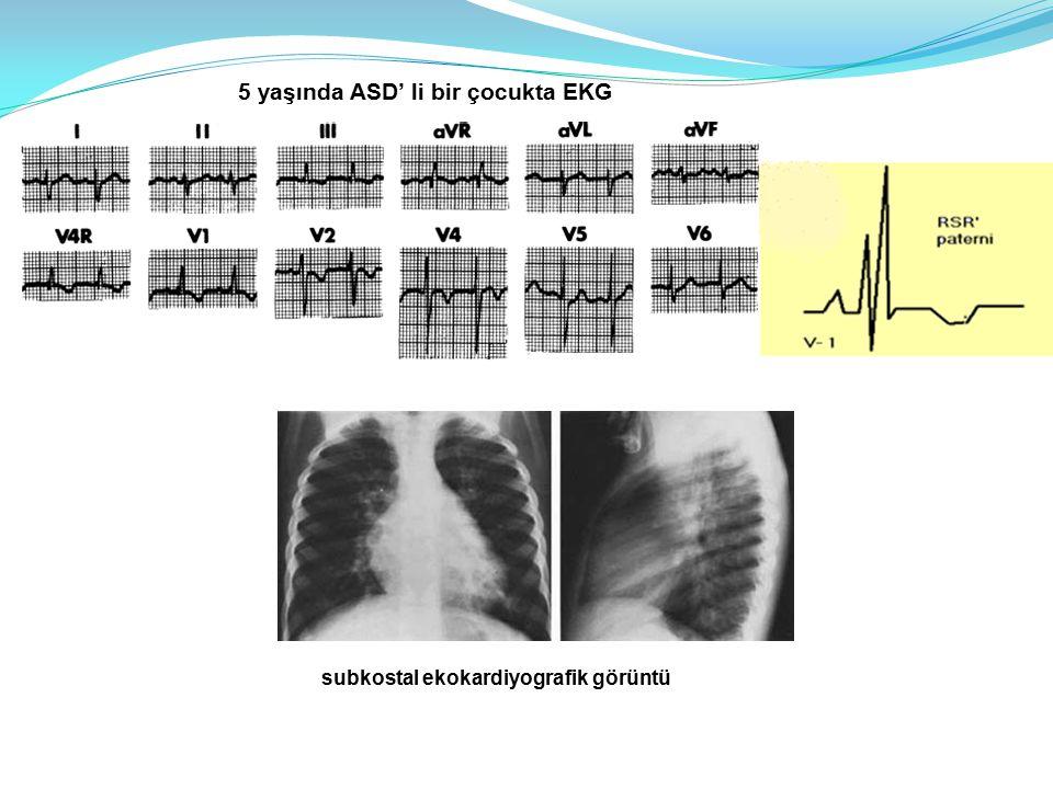 5 yaşında ASD' li bir çocukta EKG