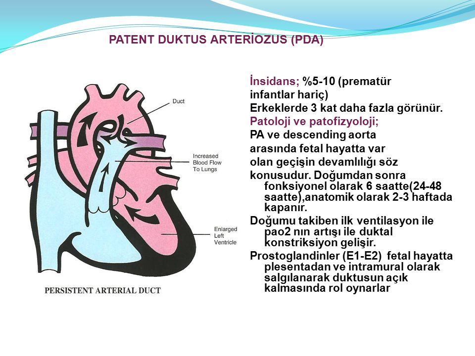 PATENT DUKTUS ARTERİOZUS (PDA)