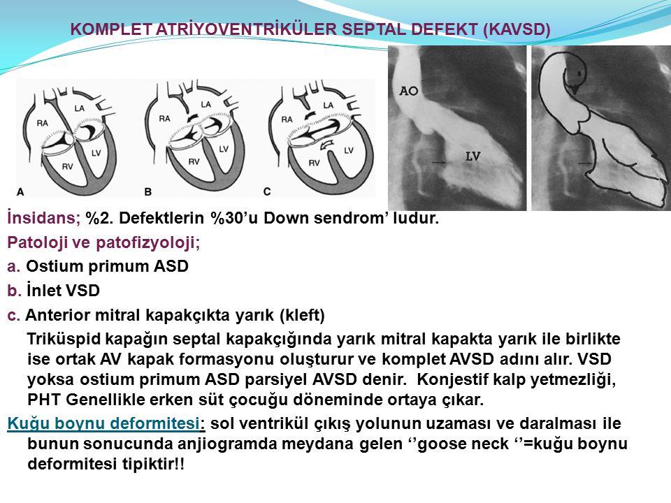 KOMPLET ATRİYOVENTRİKÜLER SEPTAL DEFEKT (KAVSD)