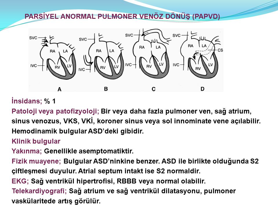 PARSİYEL ANORMAL PULMONER VENÖZ DÖNÜŞ (PAPVD)