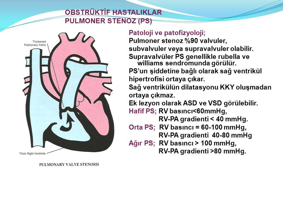 OBSTRÜKTİF HASTALIKLAR PULMONER STENOZ (PS)