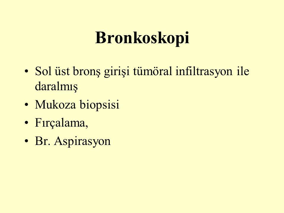 Bronkoskopi Sol üst bronş girişi tümöral infiltrasyon ile daralmış