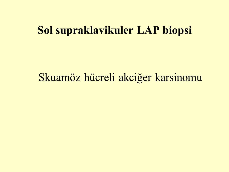 Sol supraklavikuler LAP biopsi