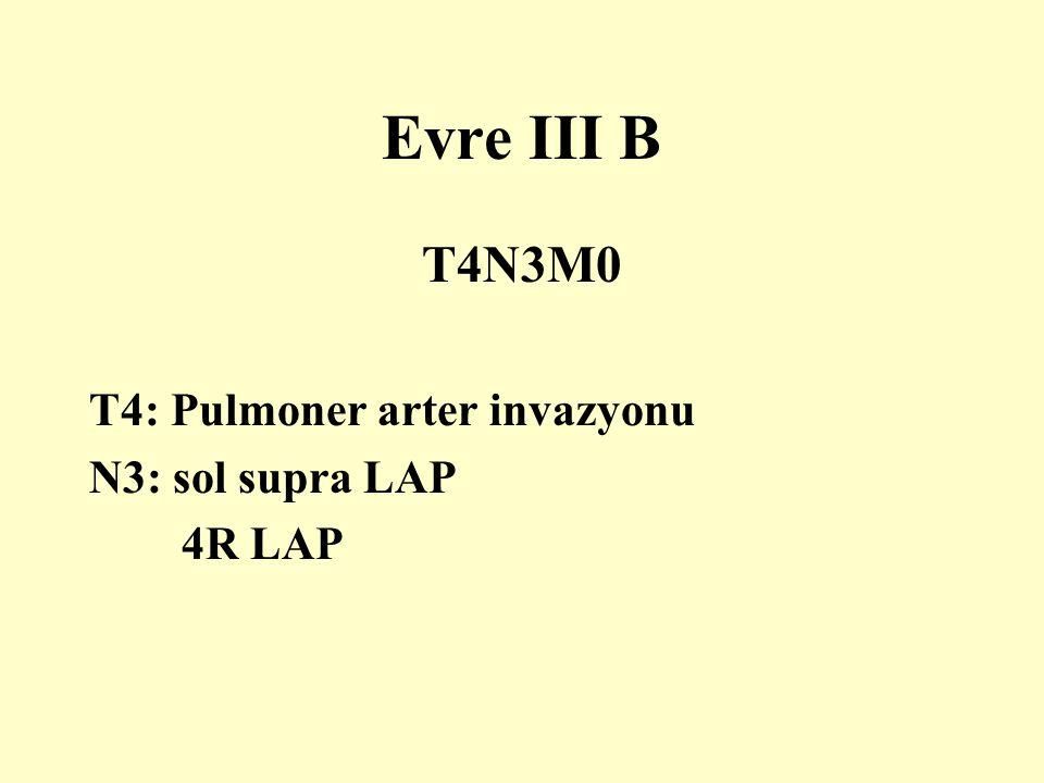 Evre III B T4N3M0 T4: Pulmoner arter invazyonu N3: sol supra LAP
