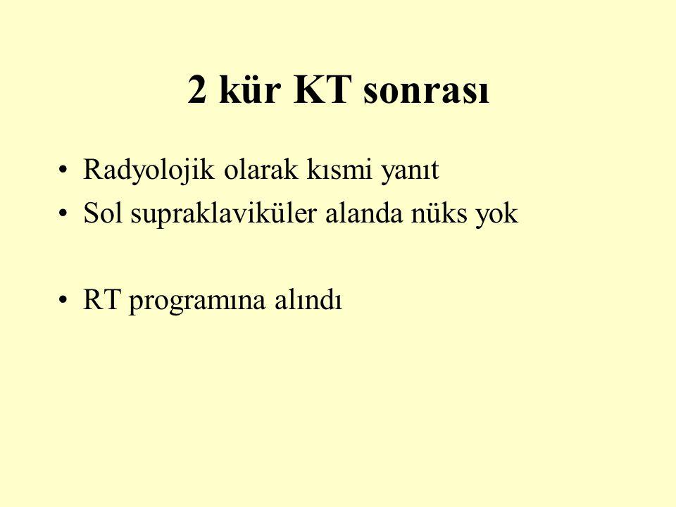 2 kür KT sonrası Radyolojik olarak kısmi yanıt
