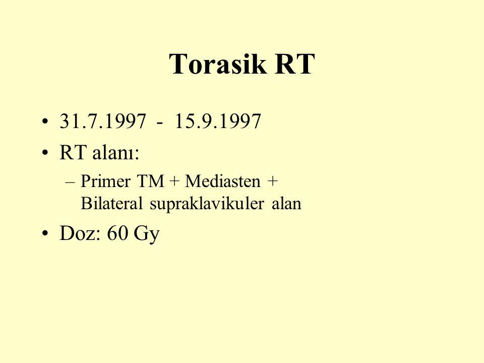 Torasik RT 31.7.1997 - 15.9.1997 RT alanı: Doz: 60 Gy