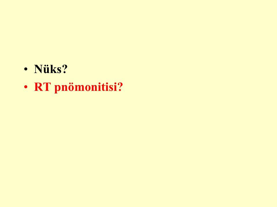 Nüks RT pnömonitisi