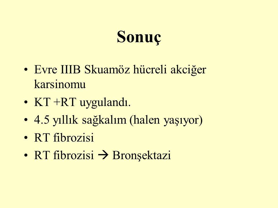 Sonuç Evre IIIB Skuamöz hücreli akciğer karsinomu KT +RT uygulandı.