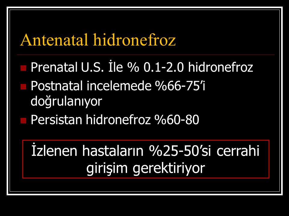 Antenatal hidronefroz