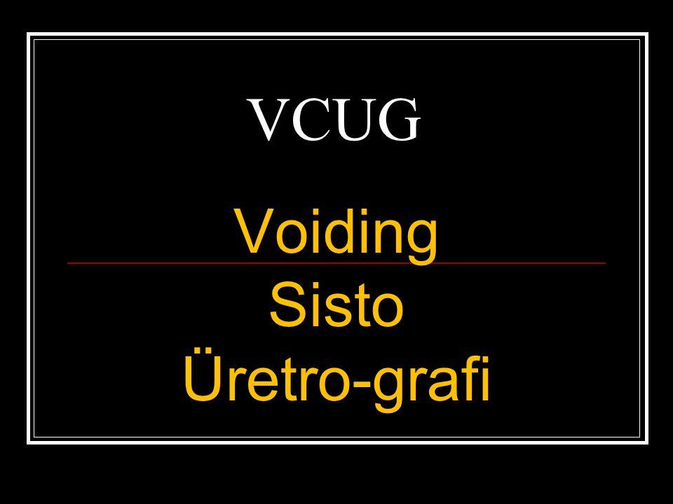 Voiding Sisto Üretro-grafi